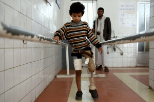A young boy who lost his leg in the Yemen war uses a prosthetic limb at a government-run rehabilitation center in Sanaa, Yemen, Saturday, March 5, 2016. Yemen's conflict pits the government, backed by the Saudi-led coalition, against Shiite rebels known as Houthis allied with a former president. Yemen's war has killed at least 6,200 civilians and injured tens of thousands of Yemenis, and 2.4 million people have been displaced, according to U.N. figures. (AP Photo/Hani Mohammed)
