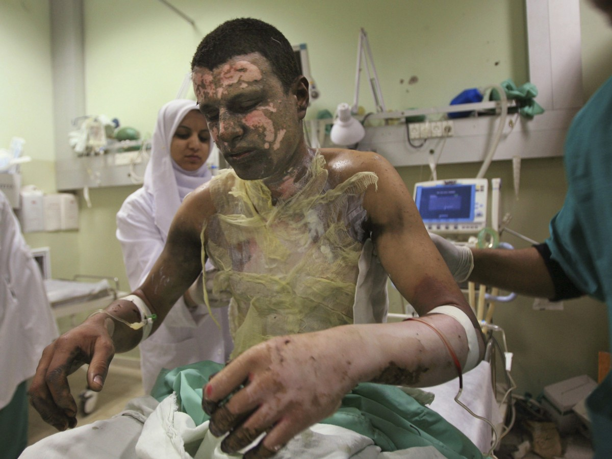 Palestinian Akram Abu Roka is treated for burns caused by munitions containing white phosphorus used by Israel. The US has admitted to supplying white phosphorus to Saudi Arabia.  (AP Photo/Eyad Baba)