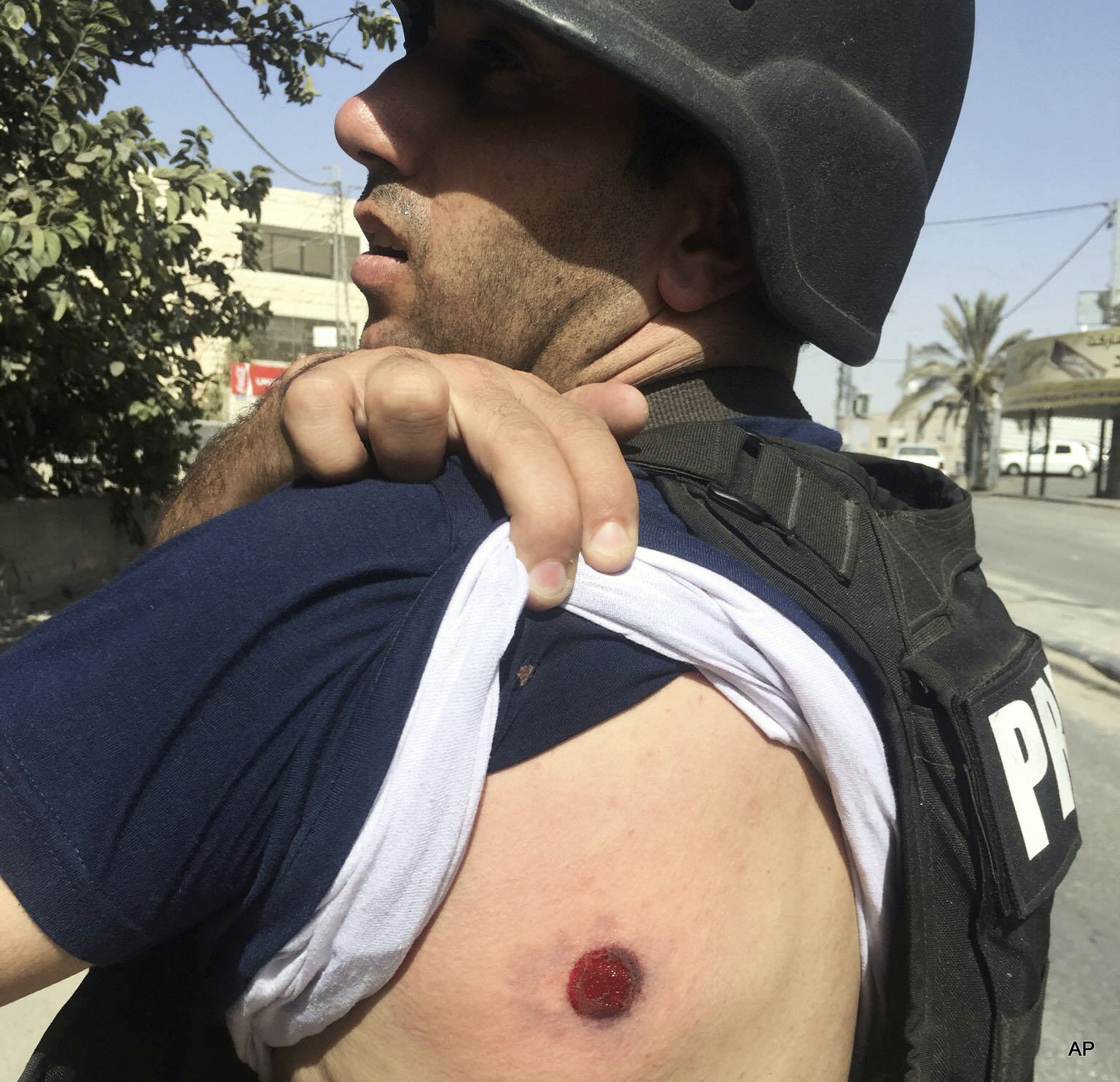Associated Press Reporter Shot By Israeli Forces