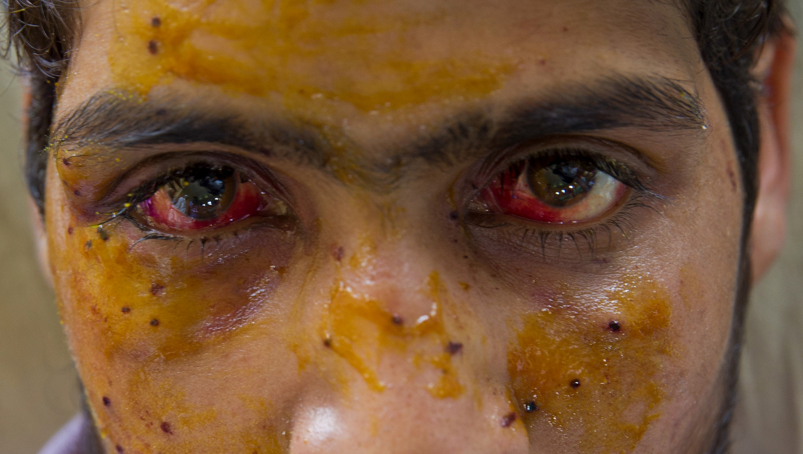 Mohammad Imran Parray, who got wounded after being hit by pellets during a protest recovers at a hospital in Srinagar, Indian controlled Kashmir. (AP Photo/Dar Yasin, File)
