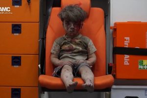The now infamous photo of Omran Daqneesh as he sits in an ambulance in Aleppo, Syria.