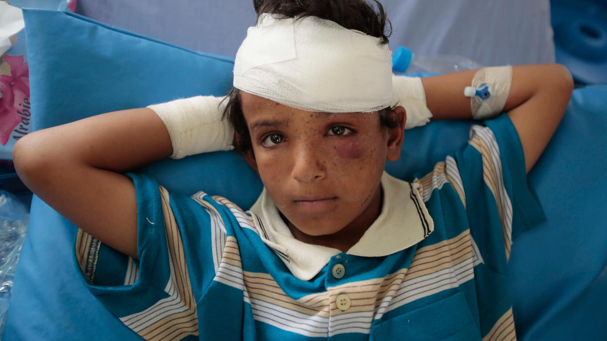 也门沙特战争儿童