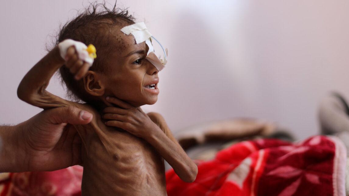 Это Йемен после того, как Байден объявил о прекращении поддержки войны США